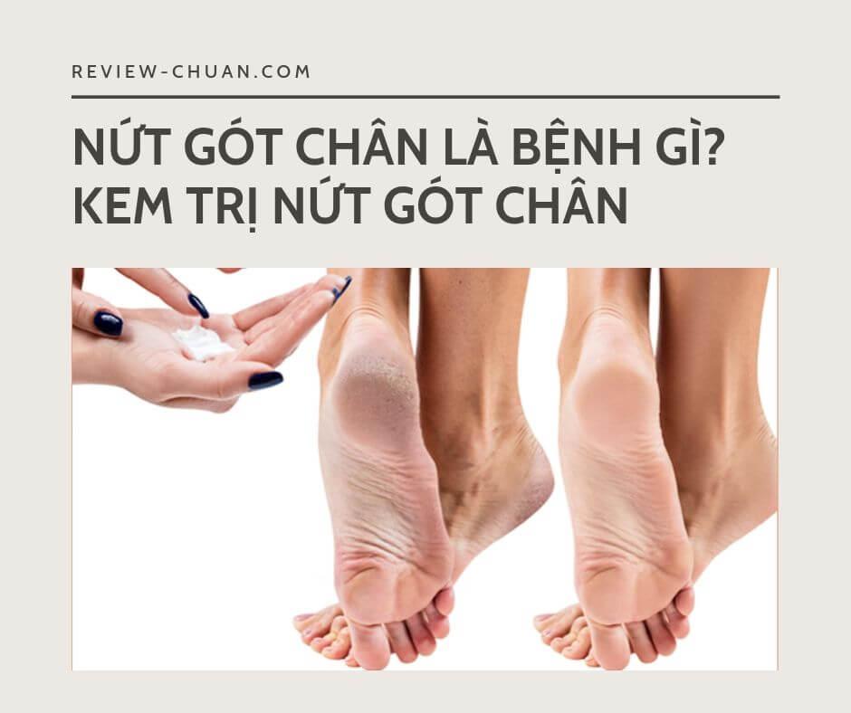 Kem trị nứt gót chân