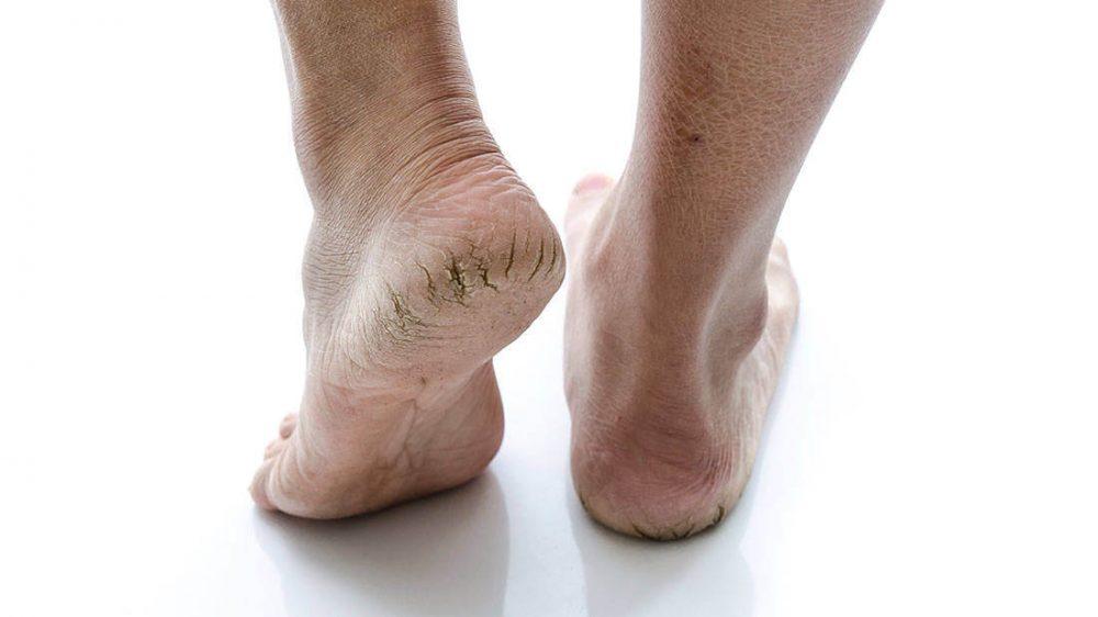 Nguyên nhân nứt gót chân