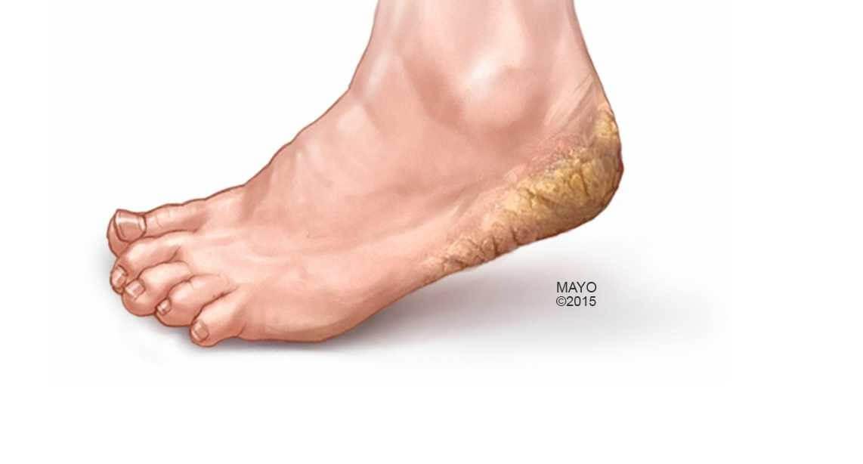 Nứt gót chân là bệnh gì
