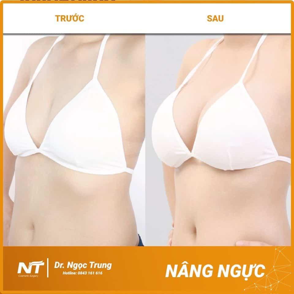 Trước và sau nâng ngực Dr. Ngọc Trung (Hình 2)